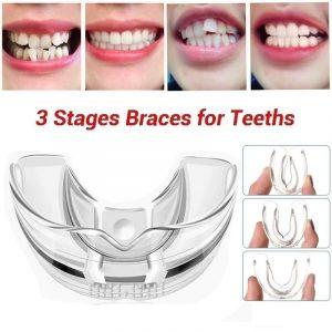 3 étapes dentaires orthodontiques appareil accolades alignement formateur dents retenue bruxisme garde-bouche dents lisseur